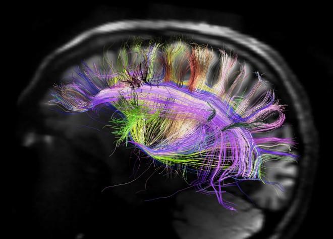 Zientziateka: A la conquista del cerebro