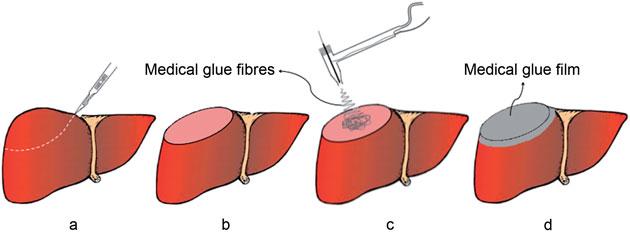 «Superglue» para cortar hemorragias