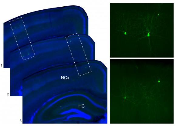 Figura 3. Izquierda, varias secciones coronales consecutivas de la corteza cerebral del ratón adulto, en donde se observa como interneuronas que pertenecen al mismo linaje (en este caso, dos linajes diferentes) tienden a adoptar una distribución espacial similar, en lugar de distribuirse al azar. Derecha, imagen de mayor aumento de los grupos de interneuronas recuadrados en las fotografías de la izquierda.