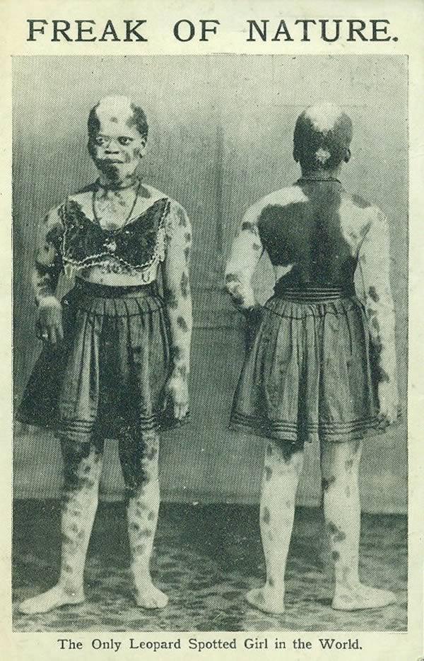 Un posible caso de vitíligo presentado como monstruo de la naturaleza a comienzos del siglo XX.
