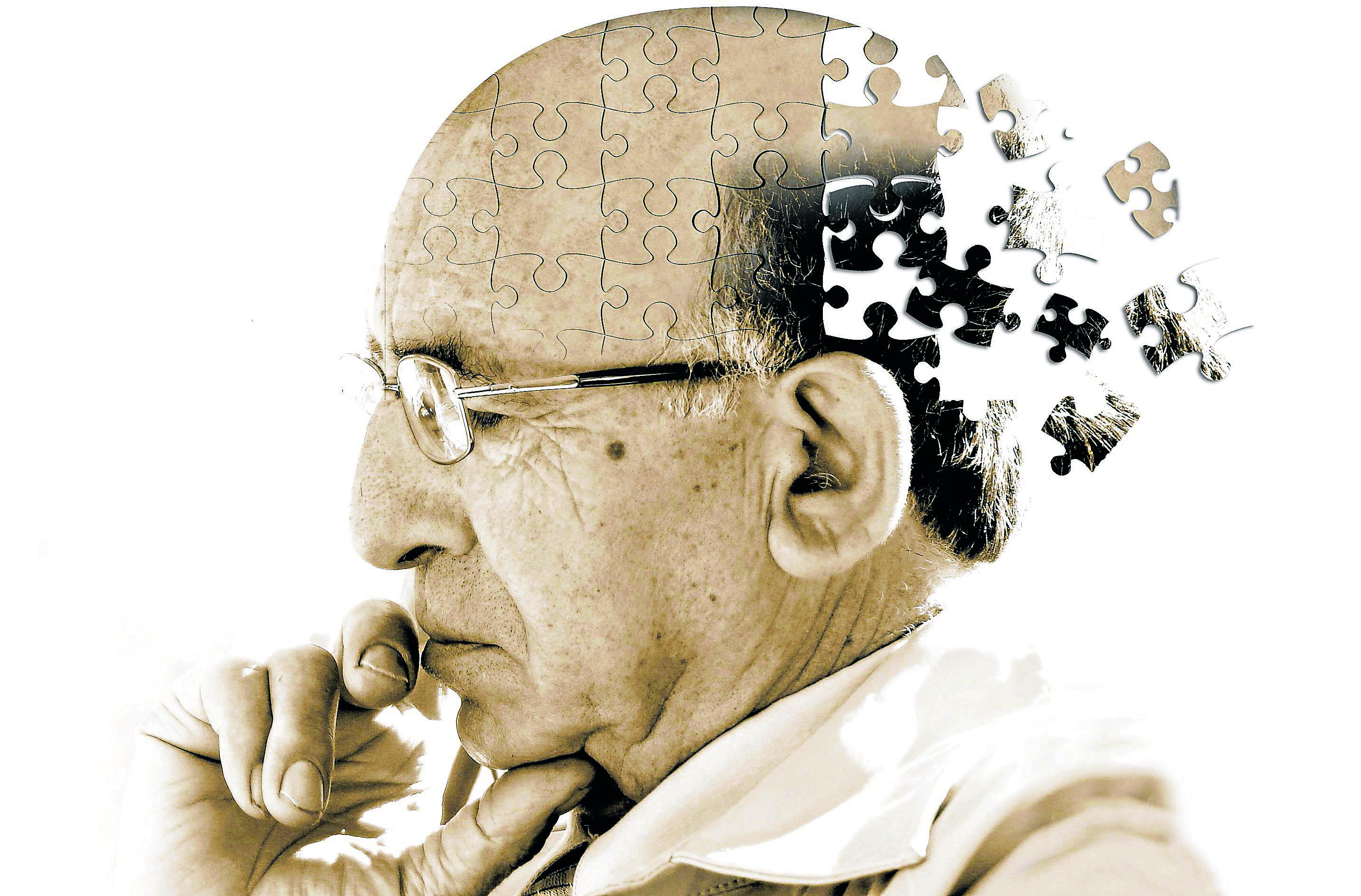 Háblame y te digo si tienes alzhéimer