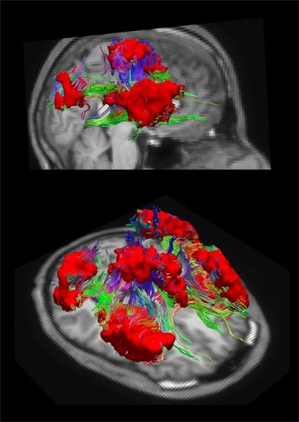 La dependencia entre conectividad estructural y funcional en el cerebro