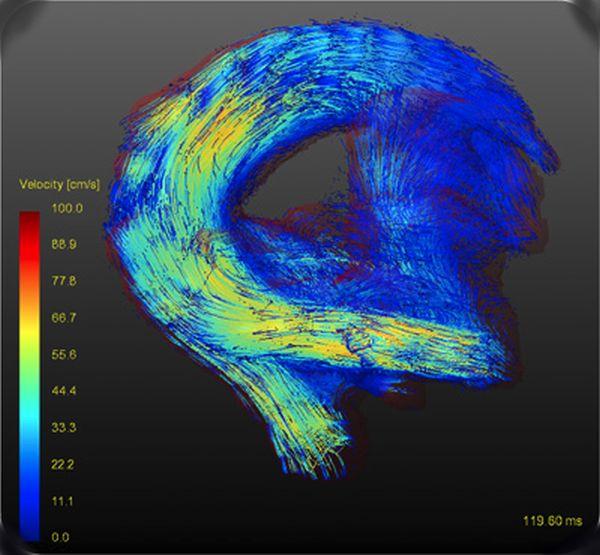 Análisis de flujo sanguíneo 4D (RM)