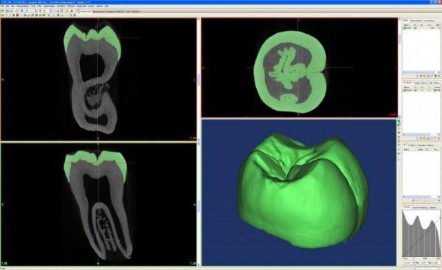 Microtomografía computerizada dental | Imagen CENIEH