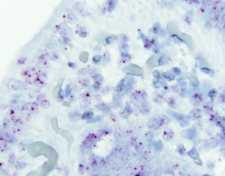 Celiaquía: el ADN no codificante es clave en el desarrollo de la enfermedad