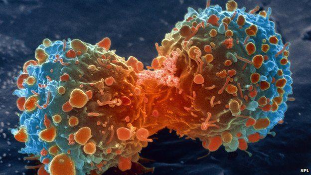 #Naukas14 Mitos del cáncer