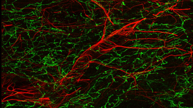 Mouse_Blood_Brain_Barrier