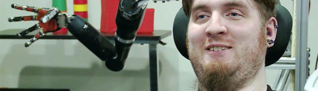 Nathan Copeland y su brazo robótico