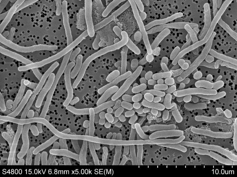 Bacterias hospitalarias: resistentes e indetectables