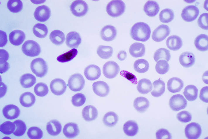 Historias de la malaria: El parásito