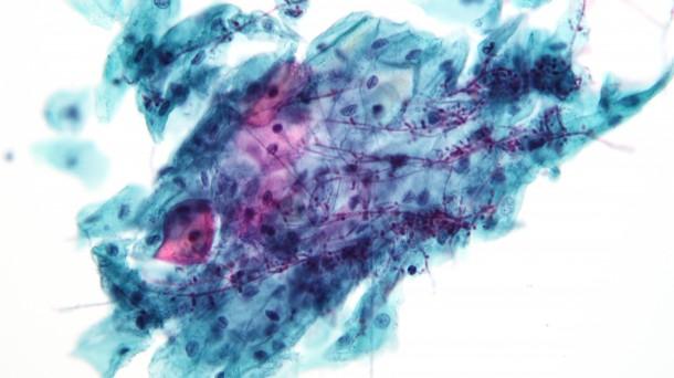 Candida auris, el hongo que ha causado una alerta sanitaria internacional