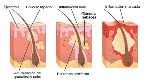 alimentos que litigio acne