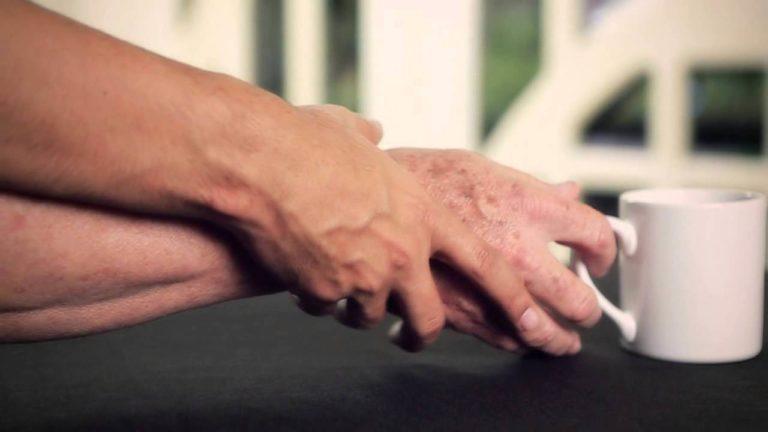 Una posible terapia neuroprotectora y neurorrestauradora para el párkinson