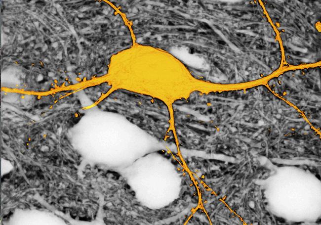 Cómo ver todas las células en tejido cerebral vivo
