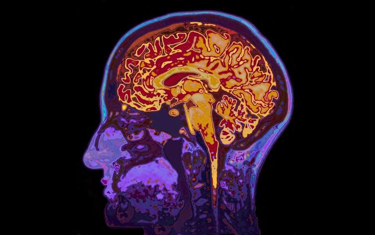 La neurociencia está desentrañando los misterios del encéfalo adolescente