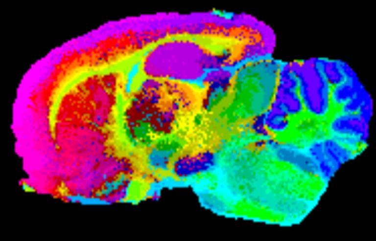 Cartografiando territorio inexplorado: imagen por espectrometría de masas