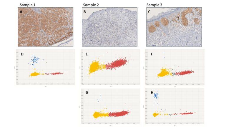 Un predictor de la evolución a metástasis del melanoma