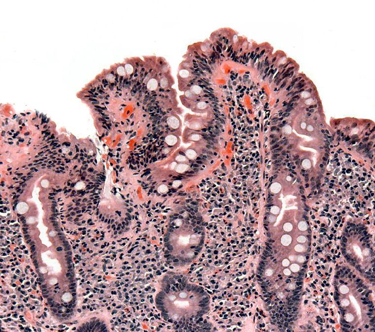 Alternativas para tratar la enfermedad celíaca