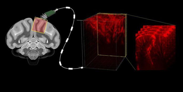 Ultrasonidos para mirar al interior del encéfalo