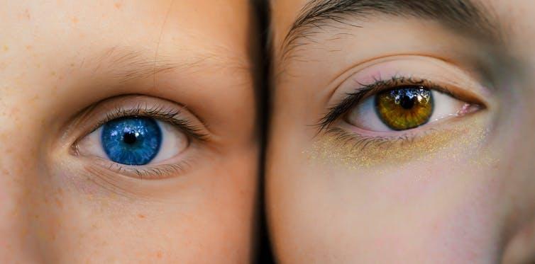 Por qué tu color de ojos no coincide con el de tus padres